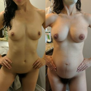 amateur photo Tits before and after