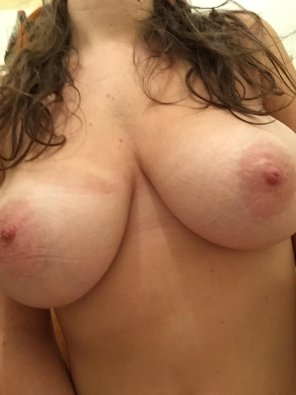 amateur photo [F] I think they're too big