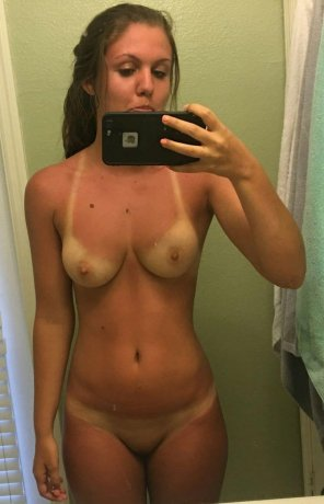 amateur photo PictureSunburnt bod.