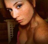 Shoulder freckles beauty