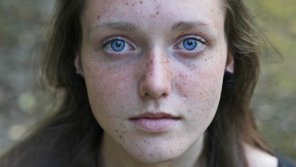 amateur photo Freckled
