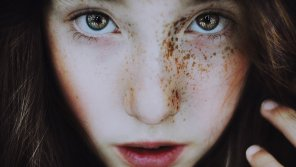 amateur photo Vibrant eyes and one-sided freckles