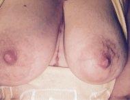 [image] [F] big scars and big tits