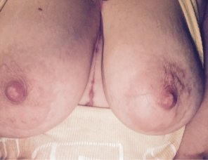 amateur photo [image] [F] big scars and big tits