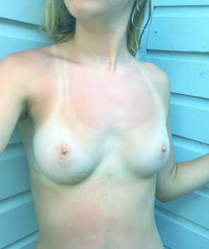 amateur photo Pale with some tanlines