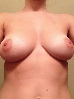 amateur photo Beautiful Speckled Boobs