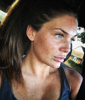 amateur photo Emma Leigh - freckles overload