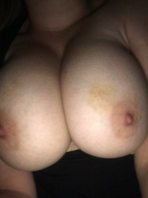 amateur photo IMAGE[Image]Add some bruises o[f] your own? :)