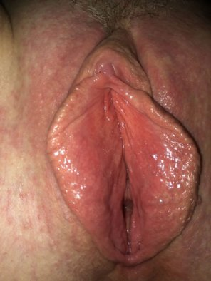 amateur photo More of my sexy labia with the clit peeking.