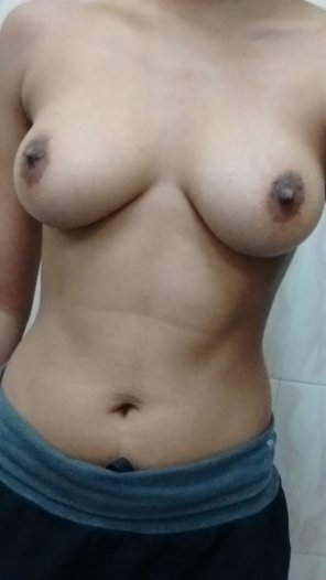 amateur photo I'm back again, all big and swollen [F]