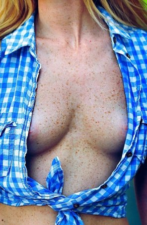 amateur photo Freckled perfection