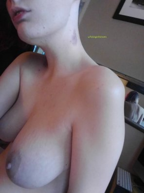 amateur photo I'm about 10 years too old for a hickey [f]