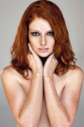 amateur photo Fantastic freckles