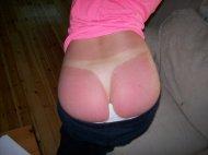 Not enough suntan lotion