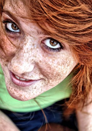 amateur photo Extreme freckles