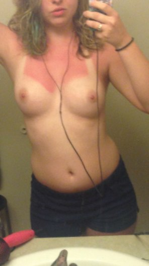 amateur photo My wife got burned this past summer, what do you think?