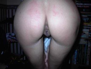 amateur photo Wifes ass after a little spanking :)