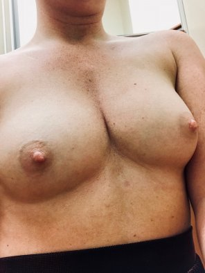 amateur photo [image] like freckles?