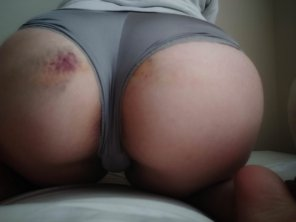 amateur photo i [f]ell down the stairs but here's my ass anyway