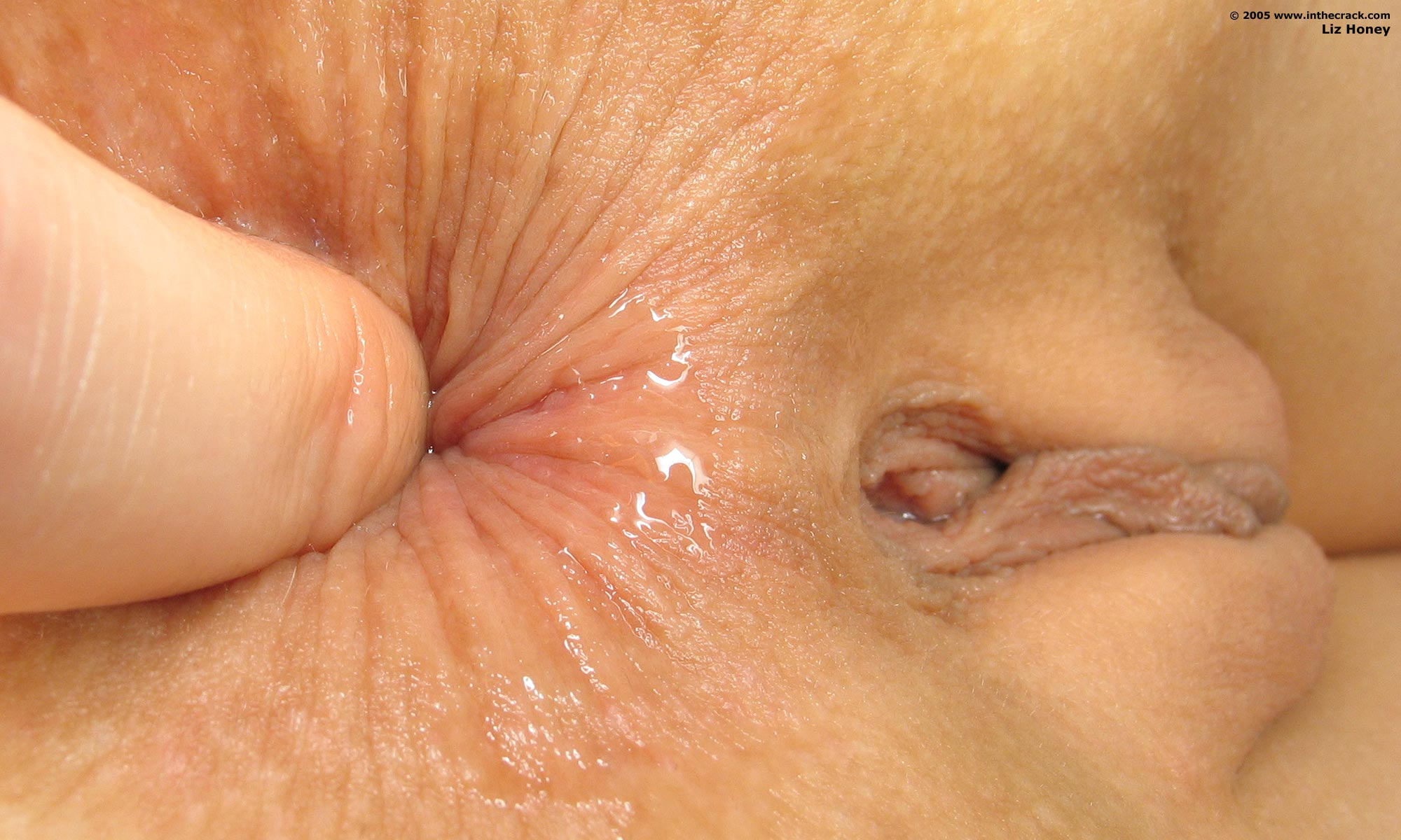 Hermaphrodiate slut itchy lumps in anus