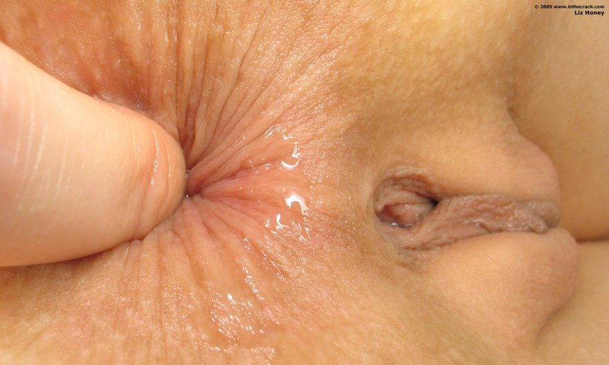 Glycerin on anus — photo 6
