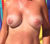 My wife's sweaty tan lines