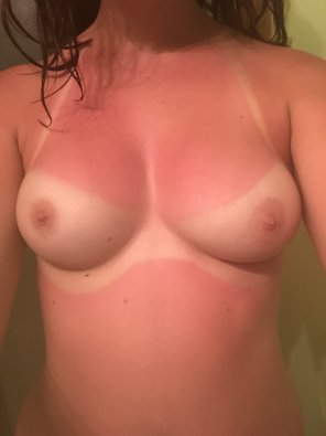 amateur photo Sunburned tits