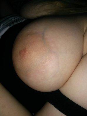 amateur photo One big veiny boob of my GF
