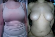 The bra makes a difference!