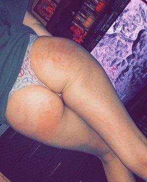 amateur photo Ass with a handprint