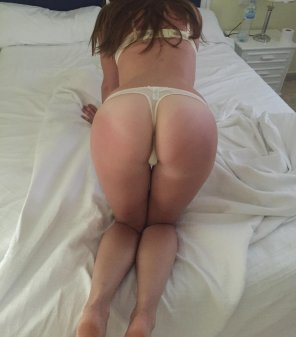 amateur photo sunburnt ass